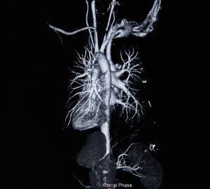 צנתור לב וירטואלי – Cardiac CT