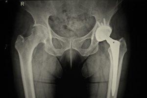 ניתוח מפרק ירך